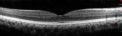 Immagine OCT spectral domain ad alta risoluzione di retina normale Bianco e nero l'OCT rappresentato nella figura 2 è in bianco e nero cioè con la scala dei grigi. Queste immagini sembrano meno belle di quelle a colori ma sono molto più utili per gli specialisti perché permettono di studiare dei dettagli che non sono evidenti sulle immagini a colori. Per questo gli OCT destinati ad altri oculisti sono quasi sempre stampati in bianco e nero.