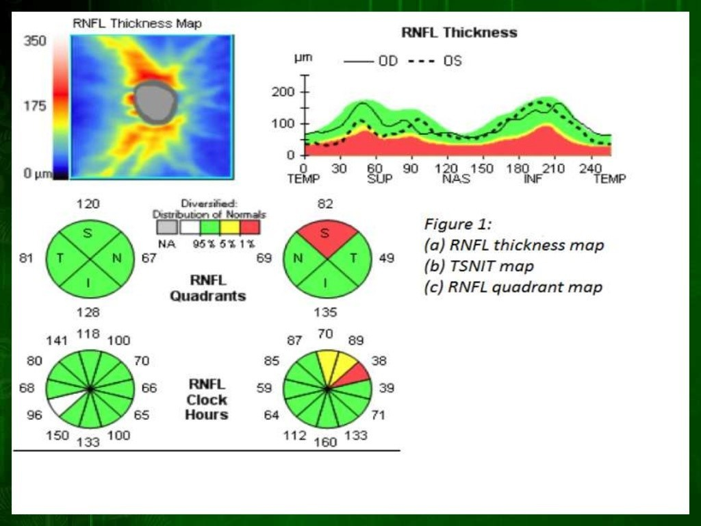 8-riduzione-spessore-fibre-nervose-glaucoma